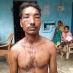 acid attack on man in arariya
