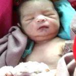 six fingers new born baby
